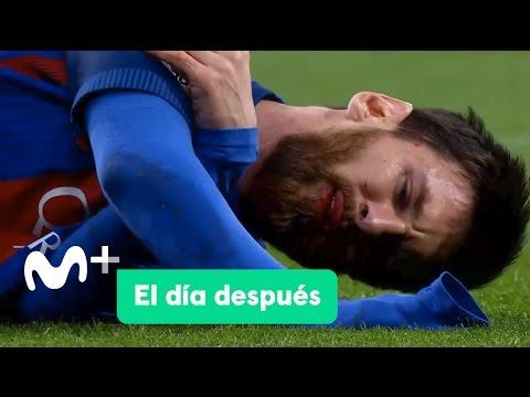 El Día Después (24/04/2017): El Clásico de Messi